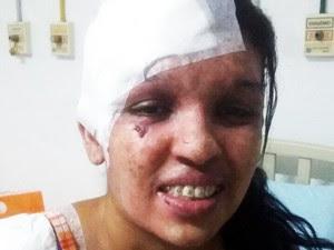 Aline teve testa e ombro cobertos após cirurgia em Santos (Foto: Vanessa Cristina Reis/Arquivo Pessoal)