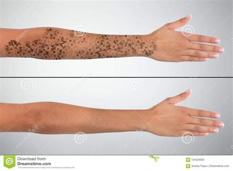 womans hand laser tattoo removal stock