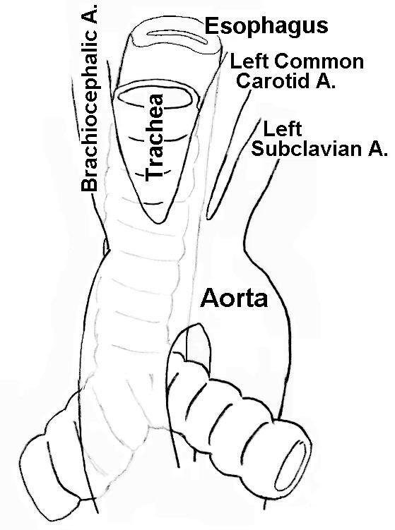 kenneth u0026 39 s blog  trachea esophagus diagram
