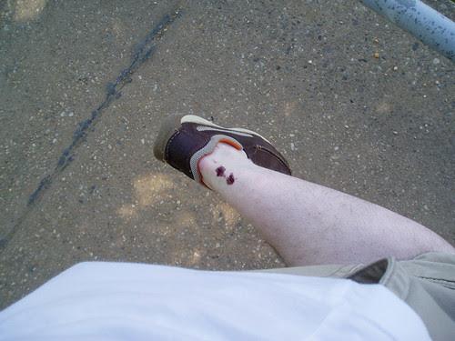 cherry stain