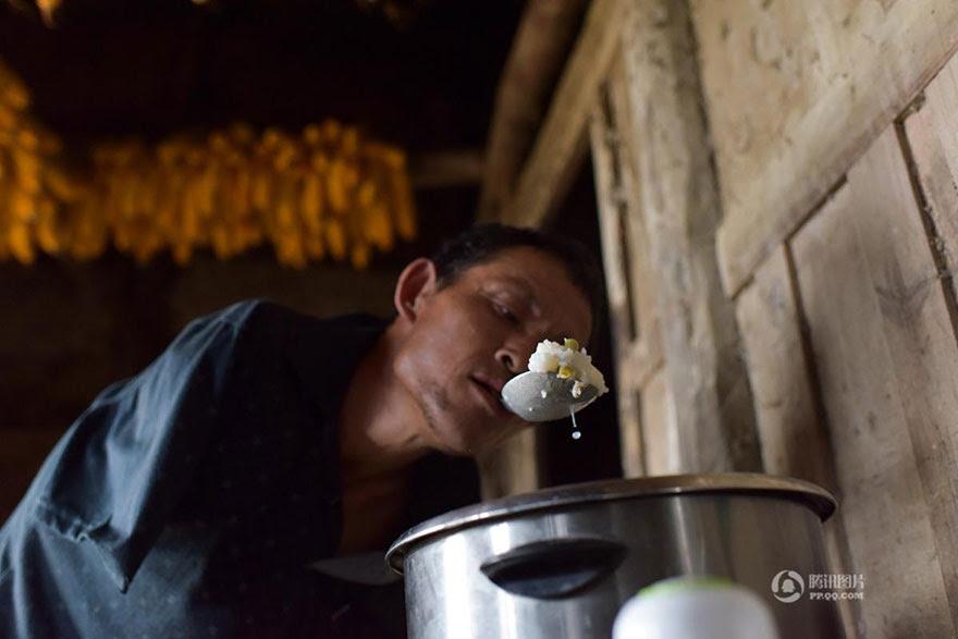 -doentes-Mãe-dentes-braços perderam-homem-alimentação-chen-Xinyin-14