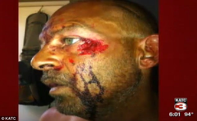 Victim: Todd Credeur, though in shock, managed to spray his attacker in the face with wasp spray to stop him from eating any more of his face