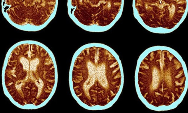 Number of people diagnosed with dementia soars by 60% in ...