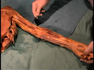 Picture from Anatomy Dissection 10 - The Axilla video