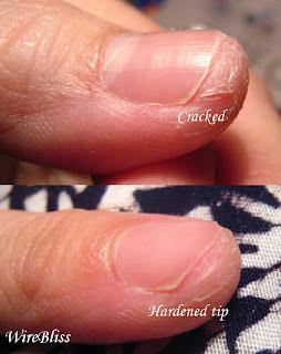 Cracked fingertips