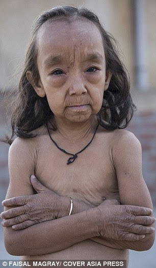 Anjali Kumari (pictured), seven, and her 18-month-old brother Keshav Kumar  suffer from a rare skin condition that leaves them looking like pensioners