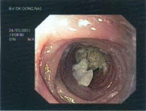 food stuck   throat osnovostiru