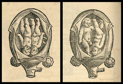 twin fetus positions in uterus (Rueff, 1554)