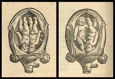 twin fetus positions in uterus (Rueff, 1554)