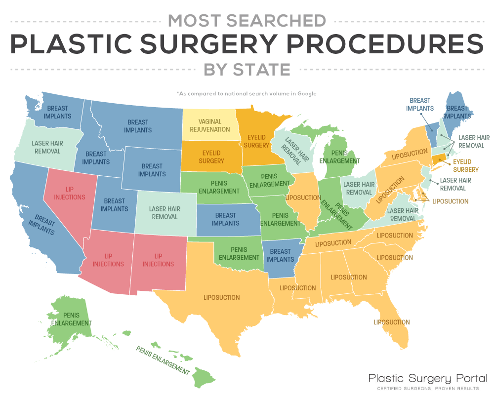 The Most Searched Plastic Surgery Procedure in Each State
