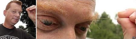 Frank Ames World's Longest Eyebrow Hair 3.7 inches long
