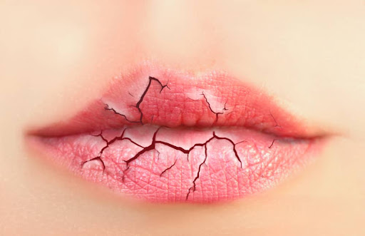 Some Diseases Marked By Broken Lips