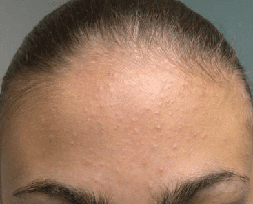 Bumps on Forehead, not Pimples, under Skin, Tiny, Large ...