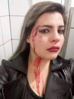 Jovem postou foto do rosto ferido nas redes sociais (Foto: Arquivo Pessoal/Letícia Lima)