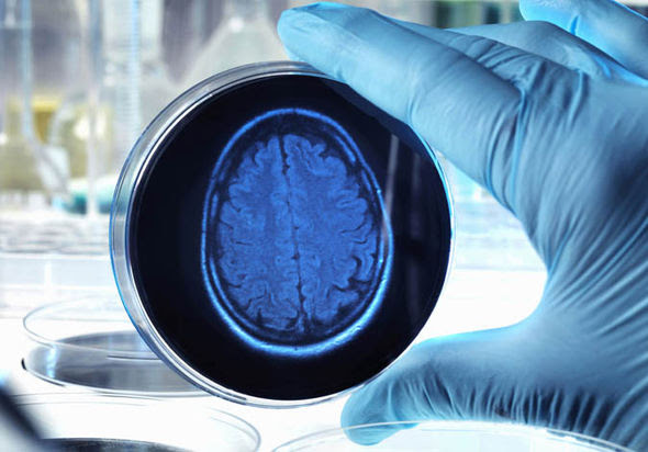 Risultati immagini per Malattia di Alzheimer
