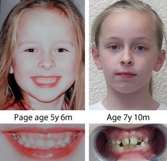 Facial development/ crooked teeth