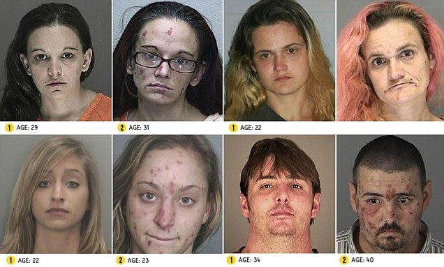 From Drugs to Mugs: Shocking before and after images show
