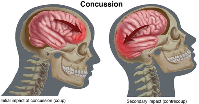 Concussions: A Cause of Depression?