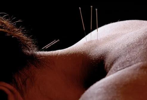 acupuntura pescoço