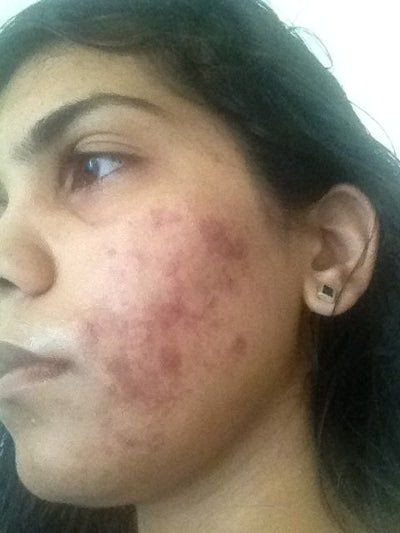 How Long Does It Takes for Skin to Be Back to Normal After ...