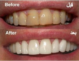 تبيض الاسنان مختلفة مجربة