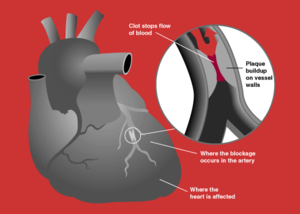 An example of a heart attack, which can occur ...