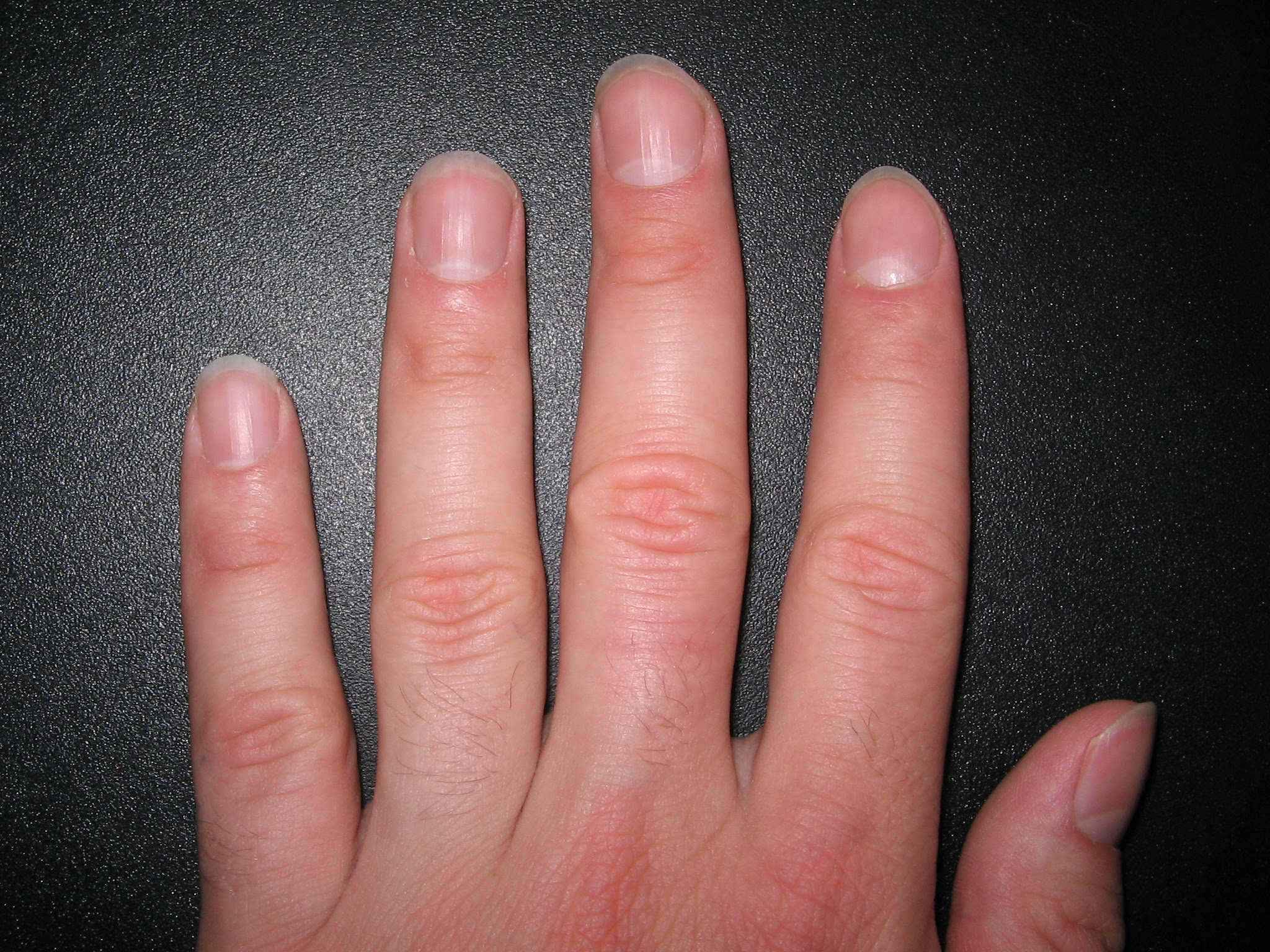 Ridges on fingernails vitamin deficiency - Awesome Nail