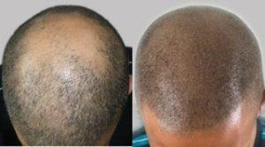 Tricho Pigmentation Kopfhaut Pigmentierung Hair Makeup Artist