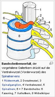 Bandscheibenvorfall - Physiotherapie, Schmerztherapie ...