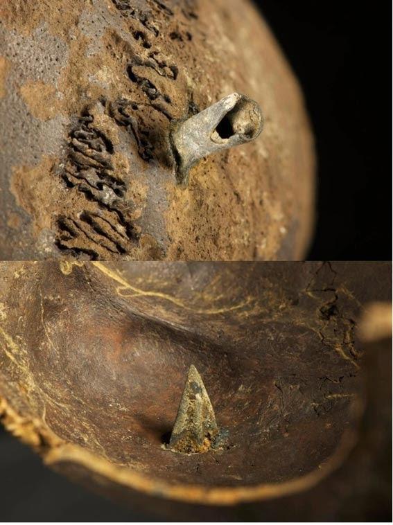 Un teschio che è stato trovato con una punta di freccia di bronzo trovato saldamente radicata in essa, entrare nel cervello.