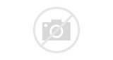 Acute Kidney Pain Images