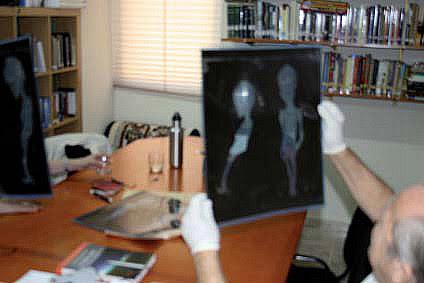 Investigacion del extraterrestre de Atacama Todas las claves del supuesto extraterrestre de Atacama