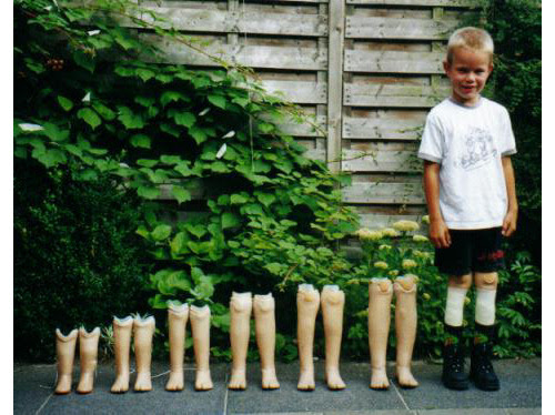 boy with 6 pairs of prosthetic legs