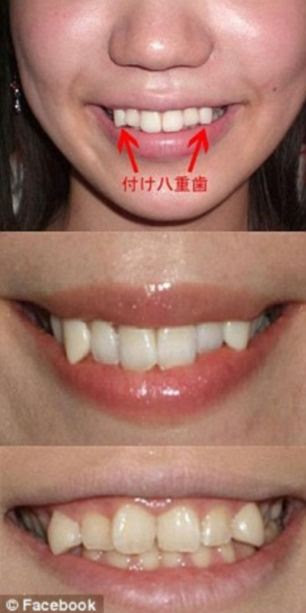 'Cute': Young women pictured after they have had adhesive mini-fangs attached to their canine teeth