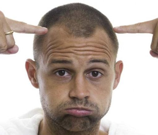 How to Treat Male Pattern Baldness