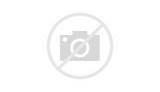 Injury Dallas Cowboys Images