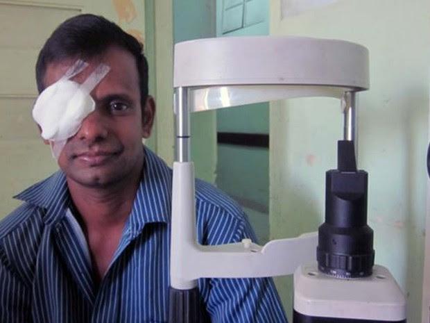 Paramon Malingam se recuperou do transplante de córnea em um hospital de Colombo (Foto: BBC)