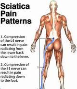 Acute Sciatic Pain Photos