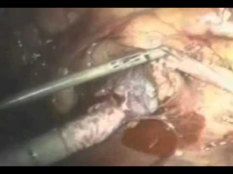 Laparoscopic Retroperitoneal Sympathectomy