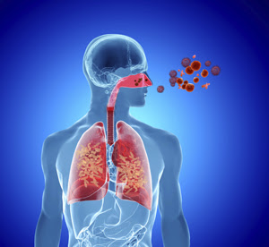 Combined Allergic Rhinitis and Asthma Syndrome | World ...
