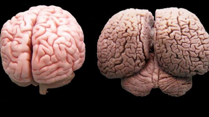 cerebro_humano_golfinho[1]