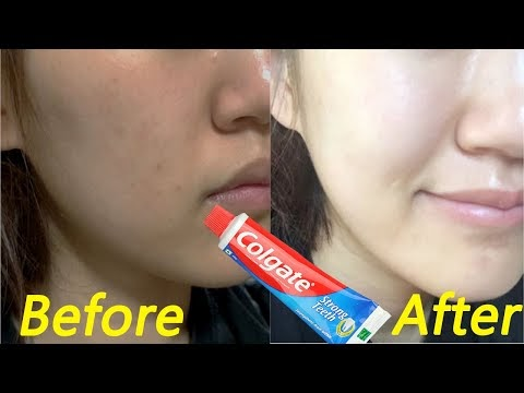 Apply Toothpaste on Your Skin & See Magical Result within 10 Minutes