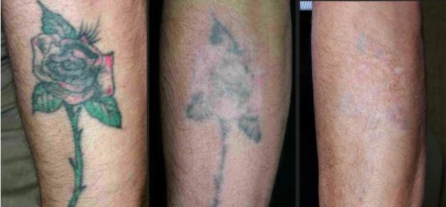 Cómo Eliminar Un Tatuaje Descubre La Técnica Más Efectiva Para