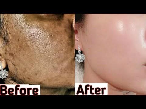 अगर 7 दिन मे skin की कायापलट ना हो जाये तो कहना, Remove Dark spot