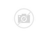 Acute Pain Under Left Breast Photos