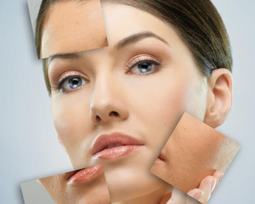 Treatment for Skin Discoloration on Face by Acutezmedia by ...