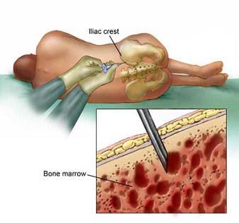 Process and Uses of Allogeneic Bone Marrow Transplant surgery