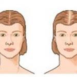 Erblicher Hormonell Bedingter Haarausfall Beratung