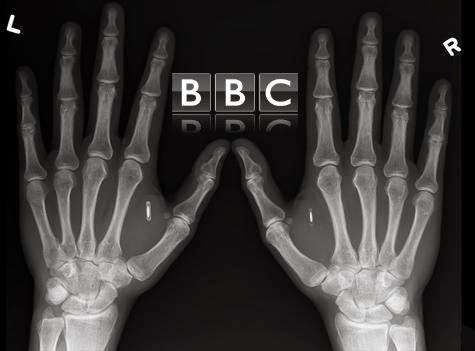 to-bbc-plassarei-to-emfuteuma-microtsip-polemiko-imerologio
