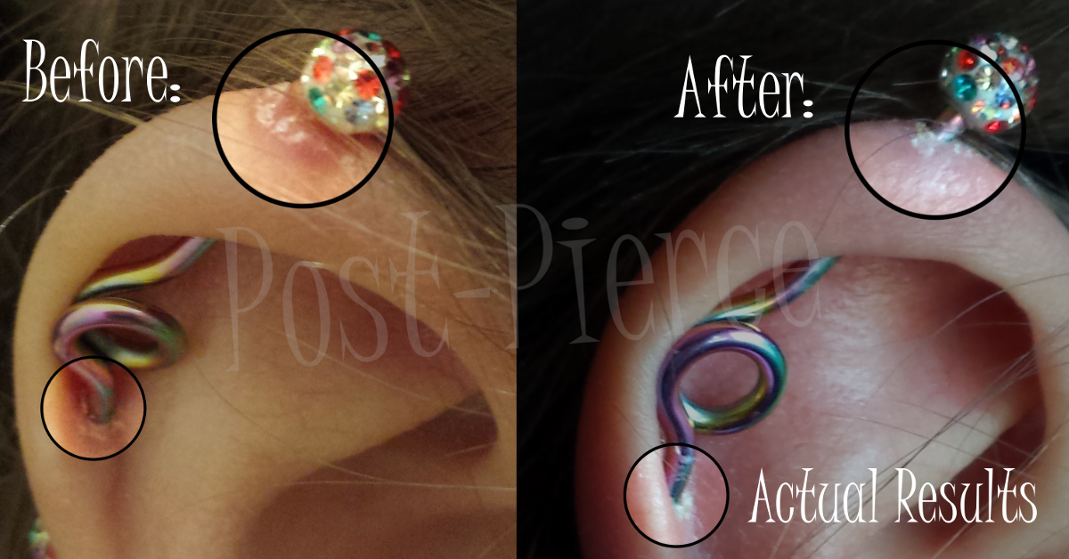 Post Pierce All Natural Cartilage Piercing After Care